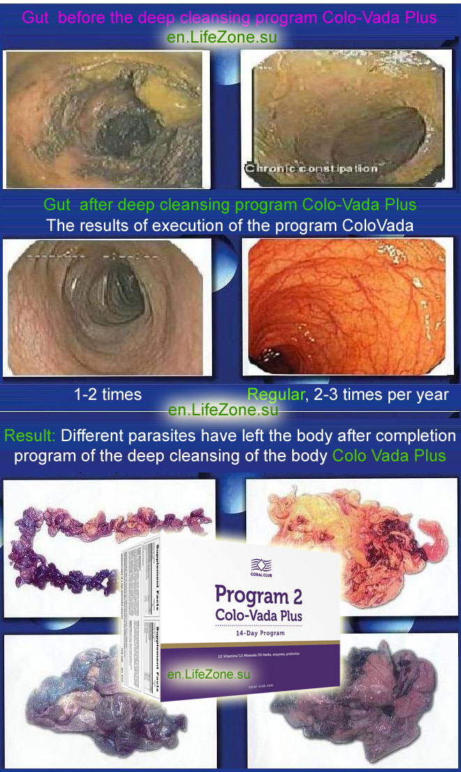 Results after completion program of the deep cleansing of the body Colo Vada Plus